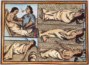 Varíola