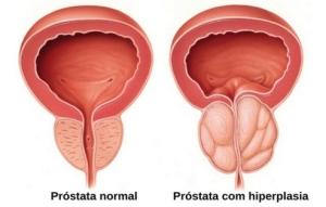 prostata_c